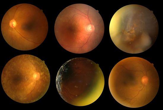 Diabetic Retinopathy_Praveen_eye_hospital