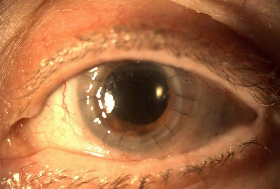 Keratoplasty _Praveen_eye_hospital
