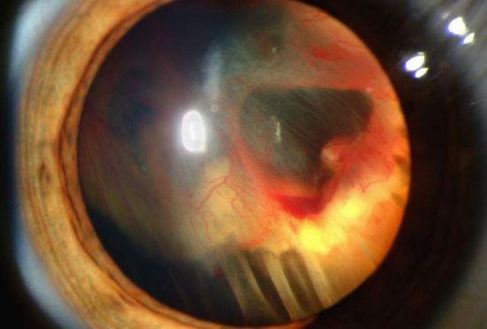 Retinal Detachment_Praveen_eye_hospital