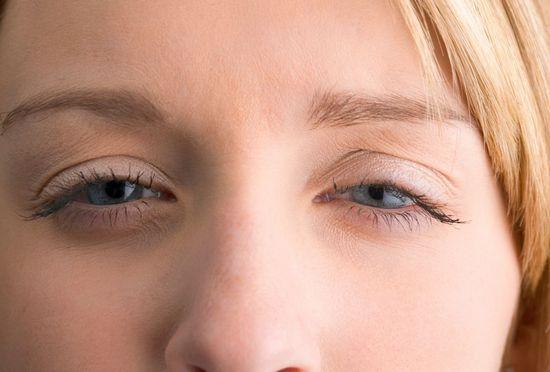Squint_Praveen_eye_hospital